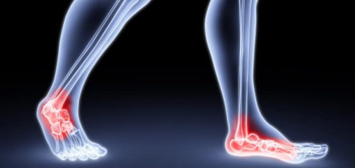 Ankle Pain Shoes Featured Image