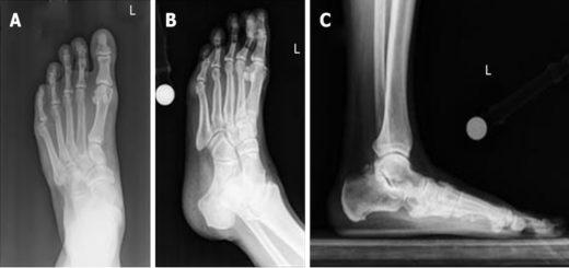 X Ray Arthritic Feet