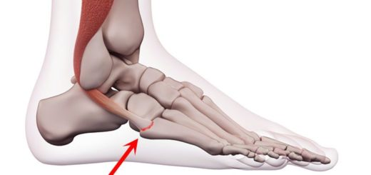 Peroneal Tendonitis Foot Injury