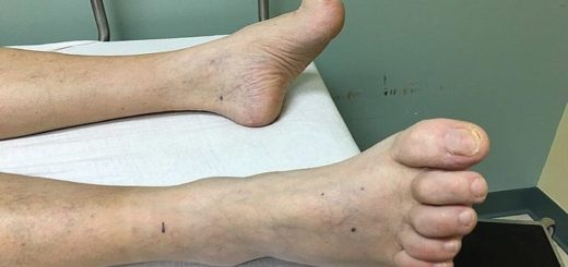 Hammertoes Feet