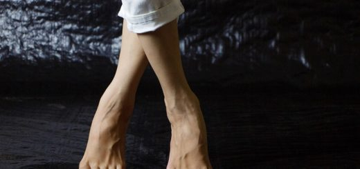 Best Shoes for Varicose Veins