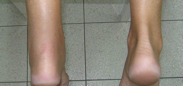 Hoka Shoes for Achilles Tendonitis